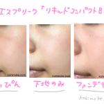 【口コミ】エスプリーク「リキッドコンパクトBB」のカバー力がすごい!つるんっとしたツヤ肌に仕上がります。